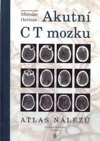 Akutní CT mozku